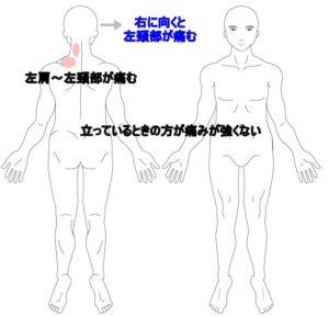 甲骨 痛み 左肩 の